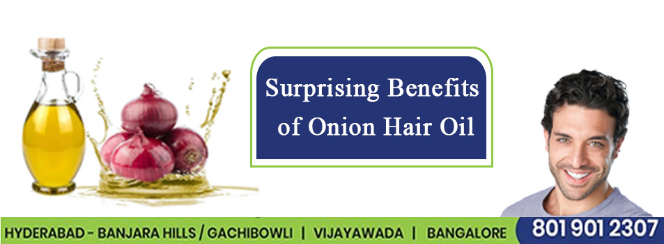 3 Surprising Benefits of Onion Hair Oil
