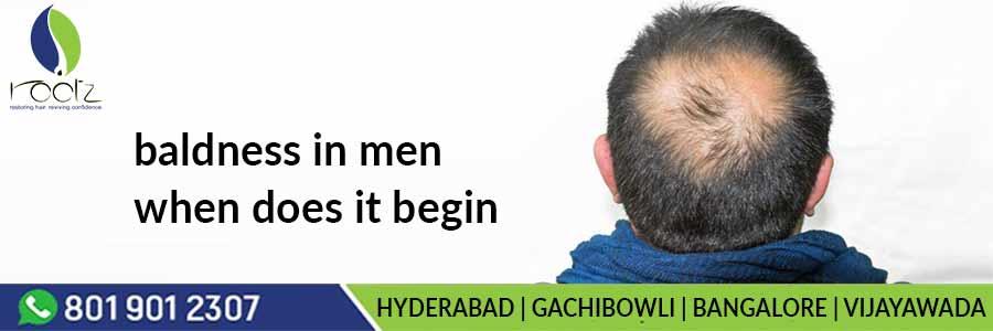 Baldness in men when does it begin