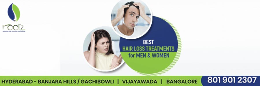 Best Hair Loss Treatments for men and women