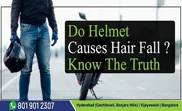 do helmet causes hair fall know the truth