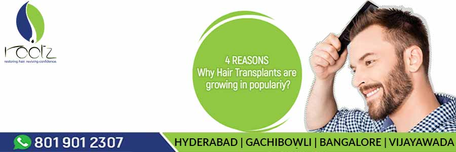 4 reasons Why Hair Transplants are growing in popularity
