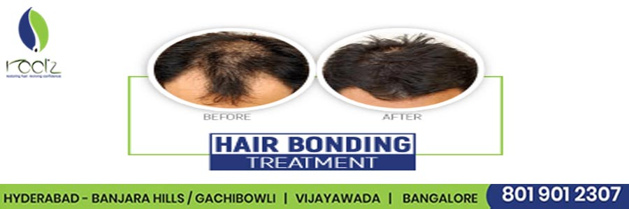 Hair Bonding: Treatment, Procedure, Cost and Side Effects