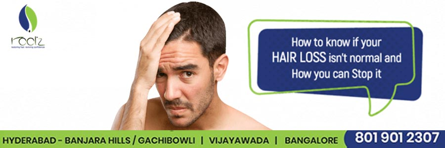 Hair loss how much is normal and what you can do about it