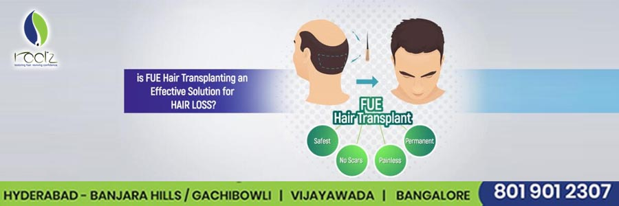 Is fue hair transplanting an effective solution for hair loss