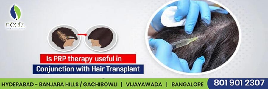 Is PRP therapy is useful in conjunction with hair transplant