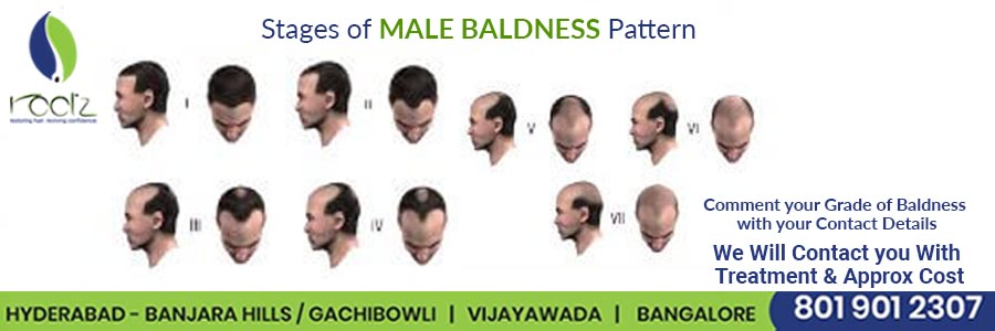 Losing Hair? Might Be Male Pattern Baldness