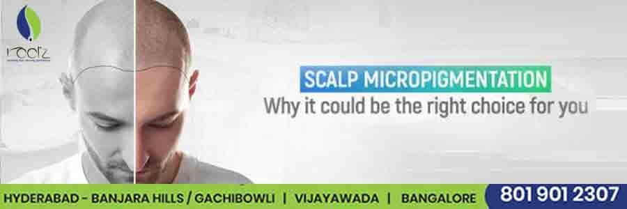 Scalp micro pigmentation why it could be the right choice for you