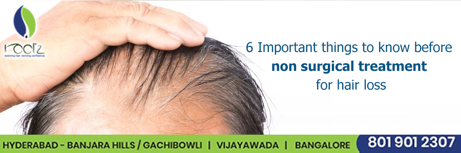 6 Important things to know before non surgical treatment for hair loss