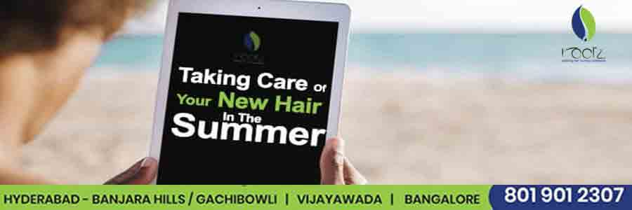 Taking care of your transplanted new hair in the summer