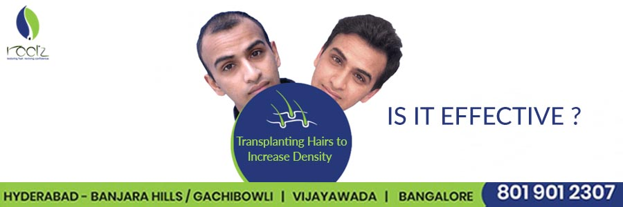 Transplanting Hairs to Increase Density: is it effective?