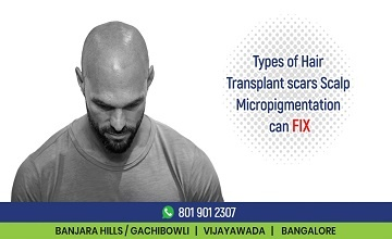 Types of Hair Transplant Scars Scalp Micropigmentation Can Fix
