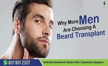 Hair Transplant In Hyderabad, Bangalore & Vijayawada