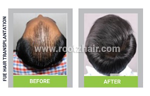 FUE Hair Transplant before and after image
