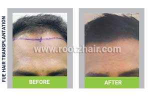 FUE Hair Transplant before and After Image 6