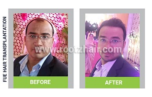FUE Hair Transplant before and after image 3