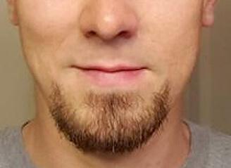 Beard Hair Transplant Surgery