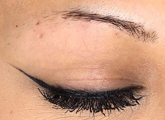 Eyebrow transplant give perfect shape