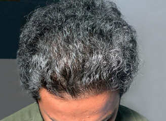Hair transplant correction1 before and after