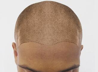 scalp pigmentation cost