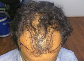 FUT Hair Transplant Cost |FUT Transplantation |Hair Clinic